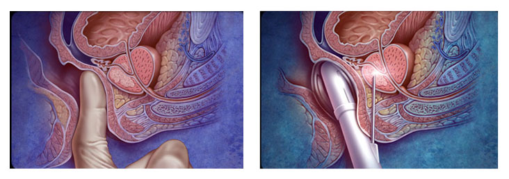prostattan biyopsi nasıl alınır