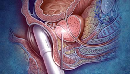 prostat nedir görsel