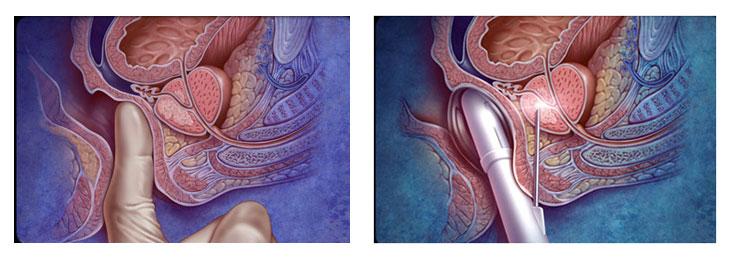 prostat ameliyatı nasıl olur video